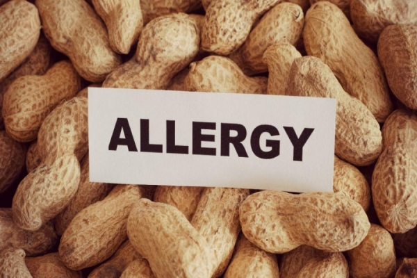 Allergy Prevention Goes Beyond Peanuts